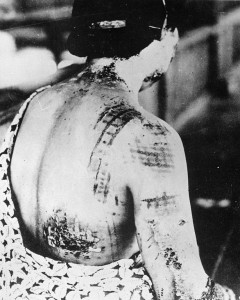 Skin of A-bomb victim is burned in a pattern corresponding to the dark portions of a kimono.